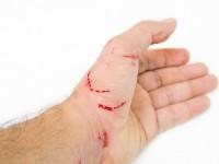 Что делать, если укусила кошка?