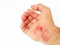 Как лечить рану после укуса кота