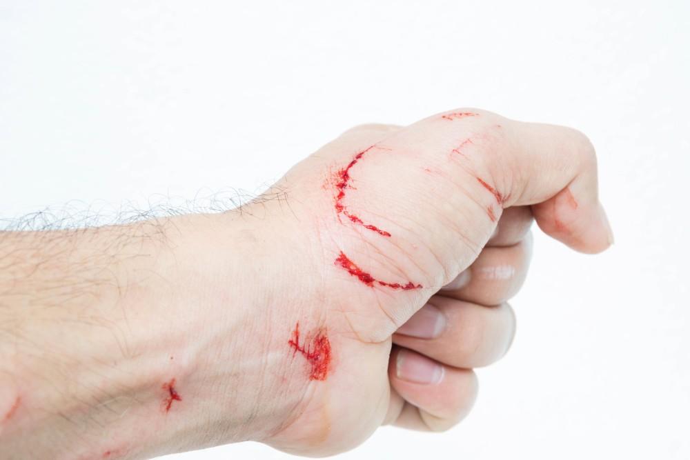 Чем лечить укус кота на руке